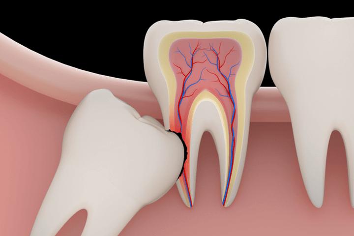 Tooth Erosion Treatment Ottawa ON