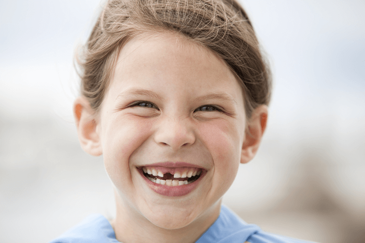 Missing Teeth Treatment Ottawa ON