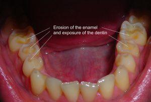 Enamel Erosion 1