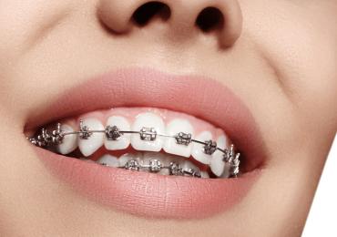 Braces On Crooked Teeth Ottawa ON