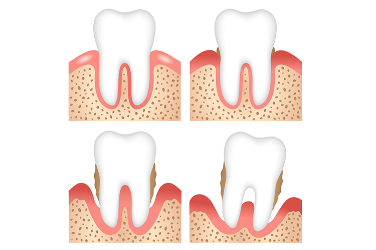 Gum Disease Treatment Ottawa ON