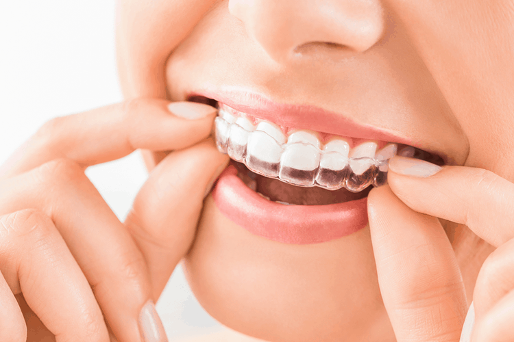 Invisalign Teeth Treatment Ottawa ON