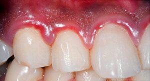 650x350 gum disease symptoms and treatments features