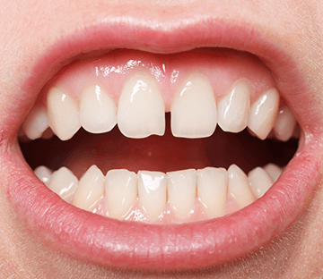 Gap Between Teeth Treatment Ottawa ON