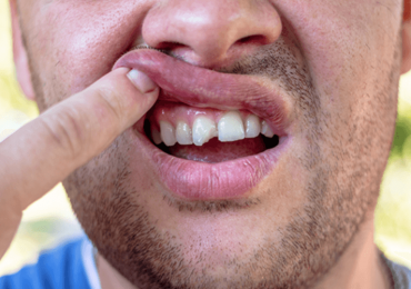 Dentist Chipped Tooth Ottawa ON