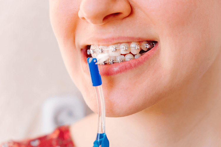 Crooked Teeth Brace Treatment Ottawa ON