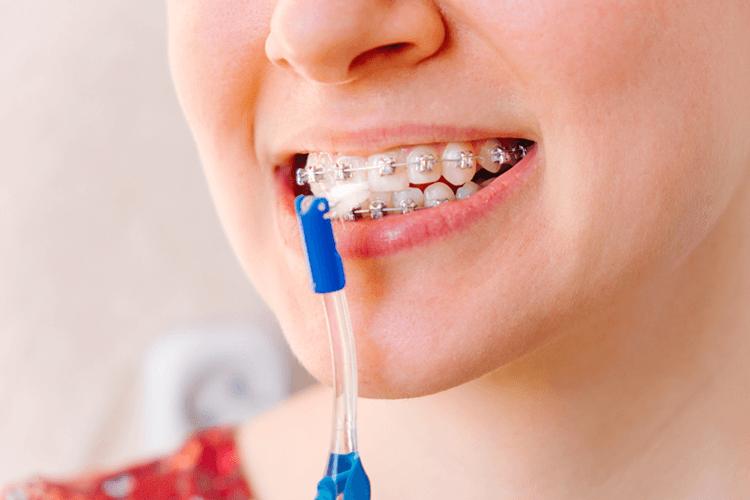 Crooked Teeth Brace Treatment Ottawa ON