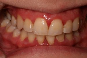 Article early periodontitis receding gum pictures 02