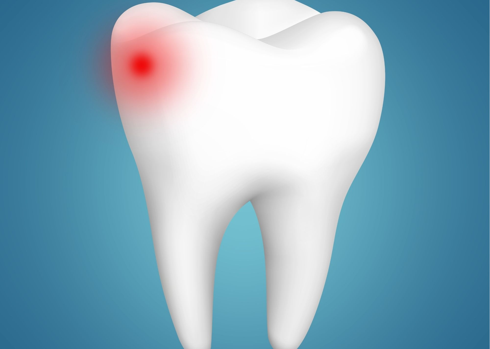 sensitive tooth decay