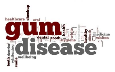 Gum disease word cloud