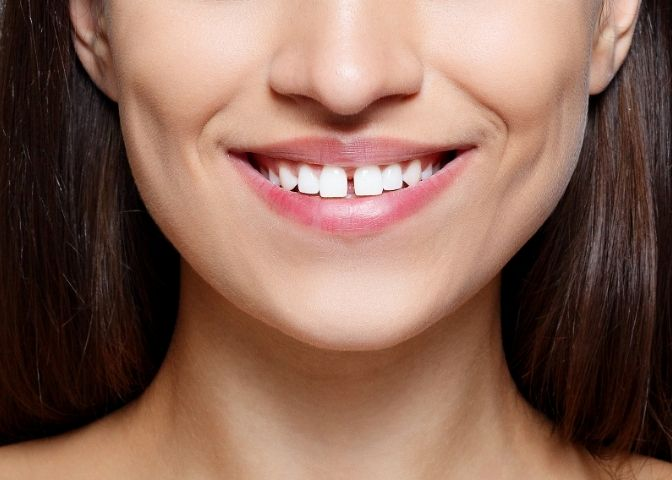 The young woman's with teeth gap