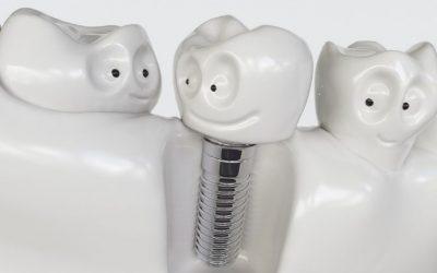 Tooth human cartoon implant